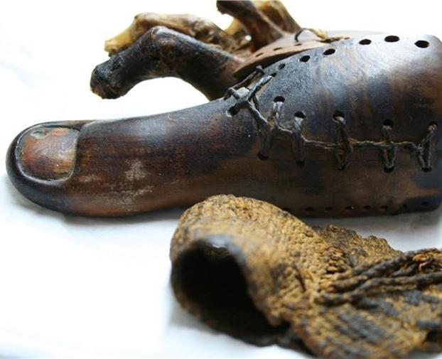 A History of Prosthetics